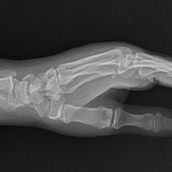 Case 21 - Scaphoid Fracture